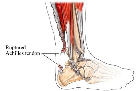 علل درد پشت ساق